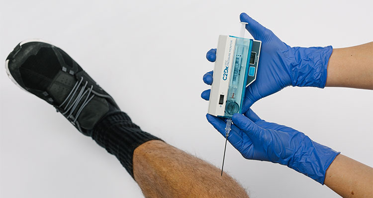 STIC device being used on a patient's leg